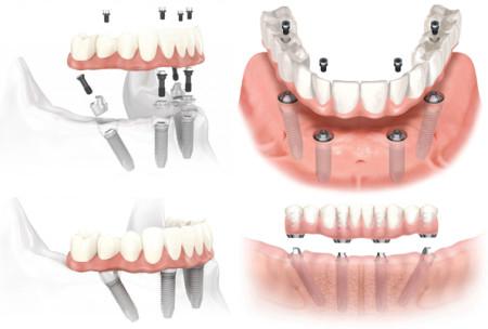 Implantologia Bergamo